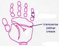 Simian Line Facts and Information
